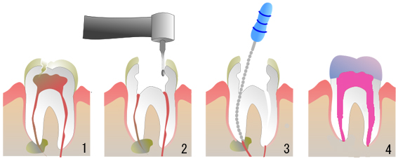 RootCanal01